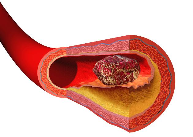 Analyzing Cardiac Risk Cases
