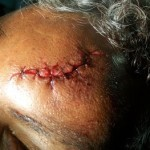 scalp laceration after a fall